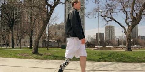 Imagem de Veja uma perna biônica controlada pelo pensamento em ação [vídeo] no site TecMundo