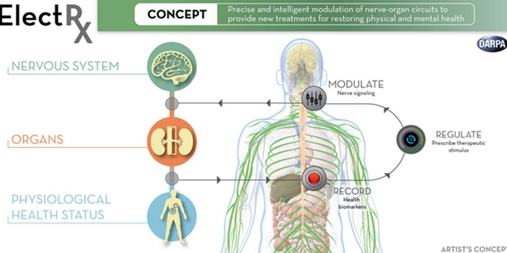 """Imagem de Implante de """"cabo"""" em sistema nervoso poderá tratar e previnir doenças no site TecMundo"""