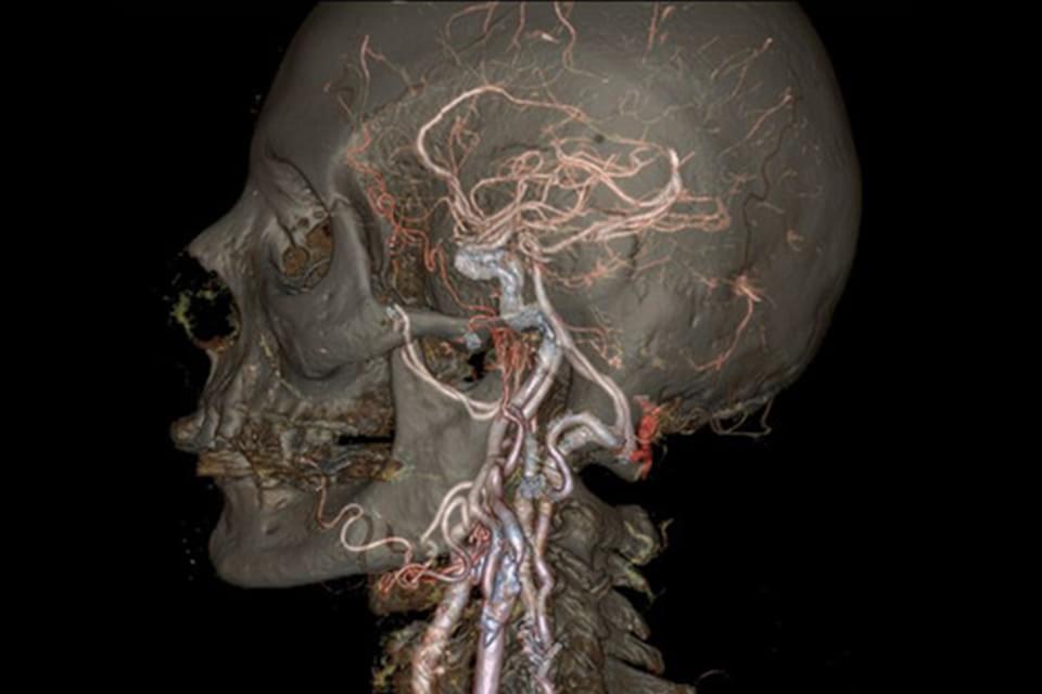 Imagem de Nova máquina de tomografia computadorizada produz imagens impressionantes no site TecMundo