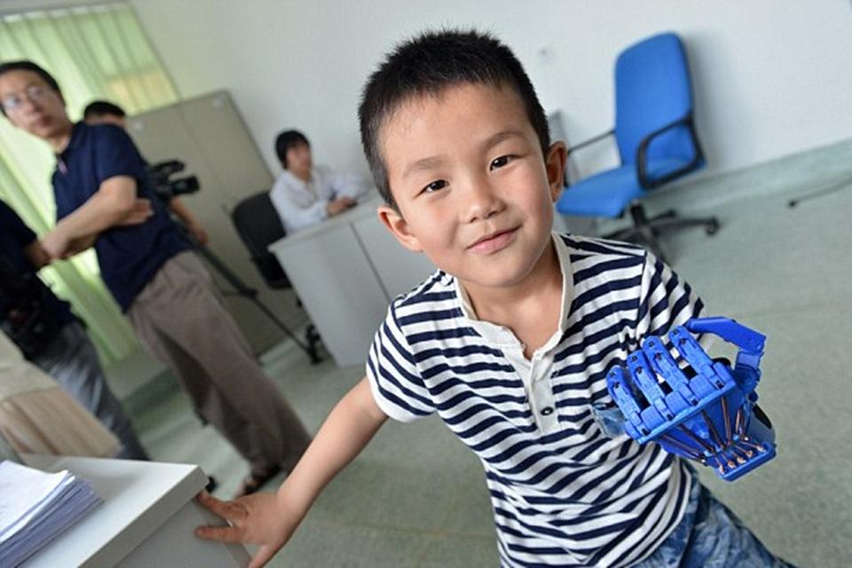 Imagem de Chinês de 6 anos ganha prótese impressa em 3D no Dia das Crianças no tecmundo
