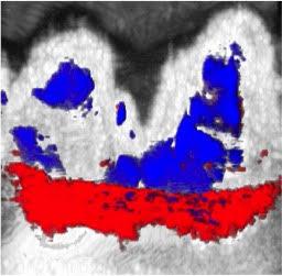 ultrassom dentes