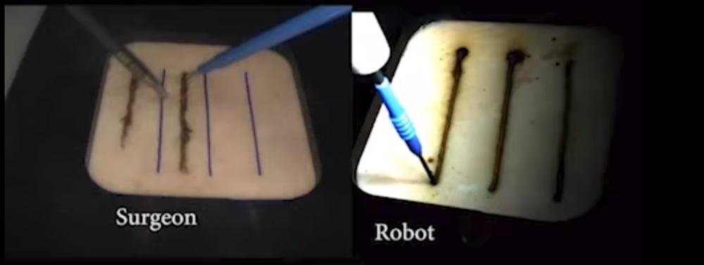 Robô cirurgia
