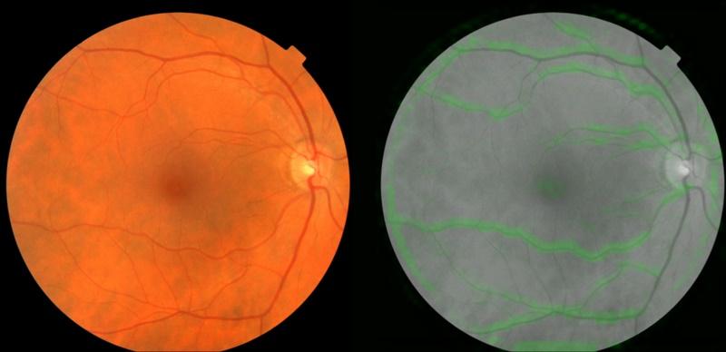 exame ocular google