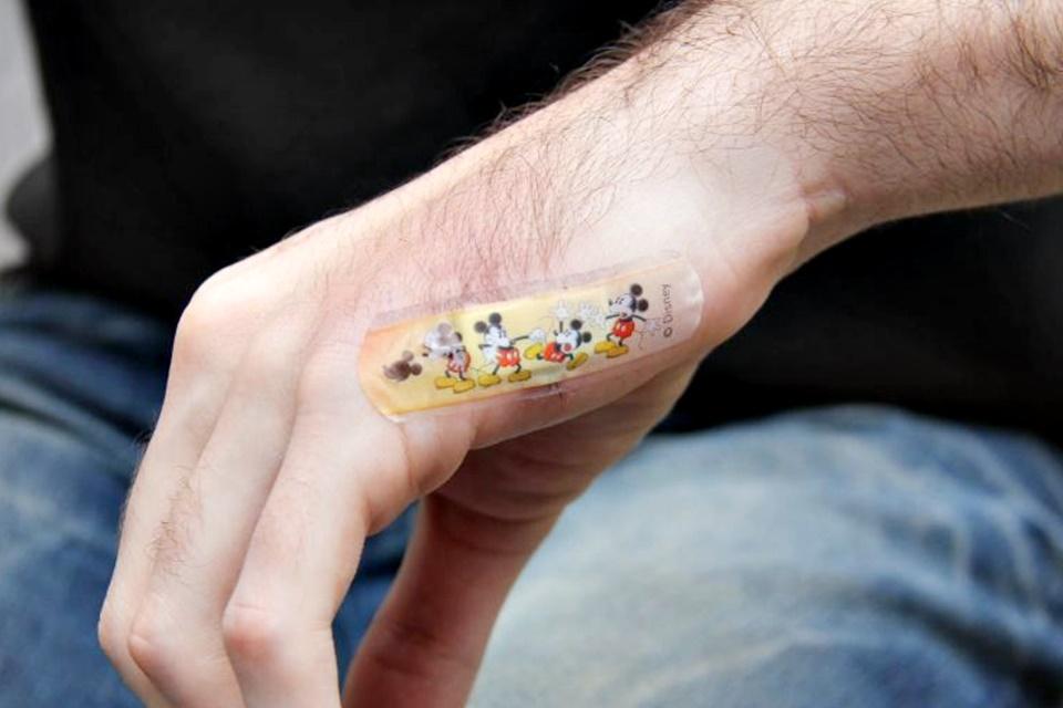 Imagem de Australiano implanta o chip do cartão de transporte dentro do próprio braço no tecmundo
