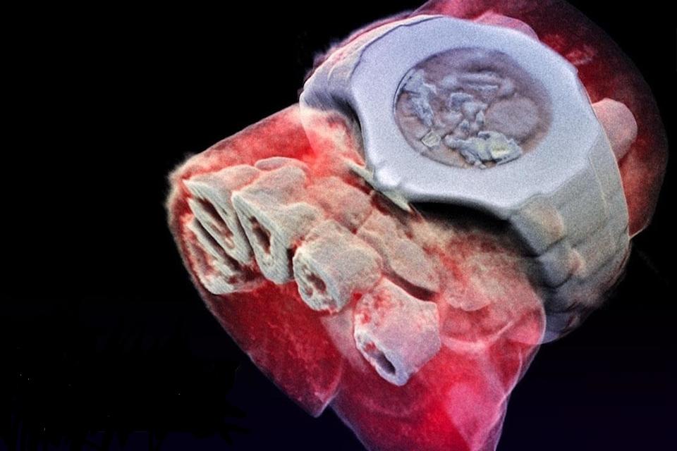 Pesquisadores desenvolvem o primeiro raio X colorido em 3D do mundo 8f7a1d27e7